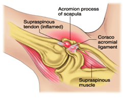 shoulder socket with inflamation